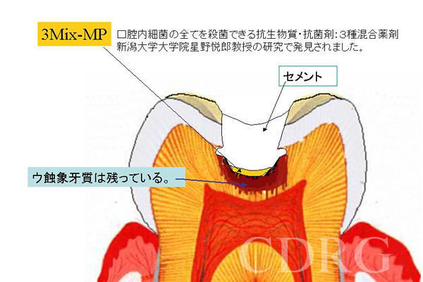 3Mix-MP法(R) 統一ページ 野村歯...